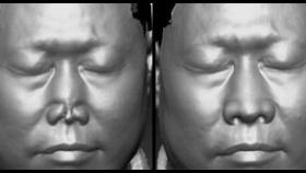 整形外科通过3D扫描打印设计完成全鼻再造一例