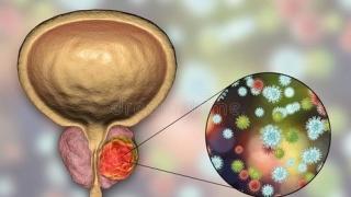 【男人之殇】早期前列腺癌,这些症状要注意了!