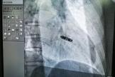 【心脏起搏器新纪元】淮海地区首例仅2克重的心脏起搏器,被这样成功植入……