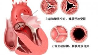 老年瓣膜病患者的福音——一天两台,这个手术不寻常!